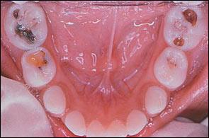 carie-bambini-studio-odontoiatrico-rosato