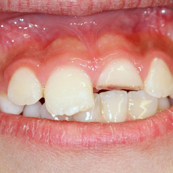 dente-frattura-studio-odontoiatrico-rosato