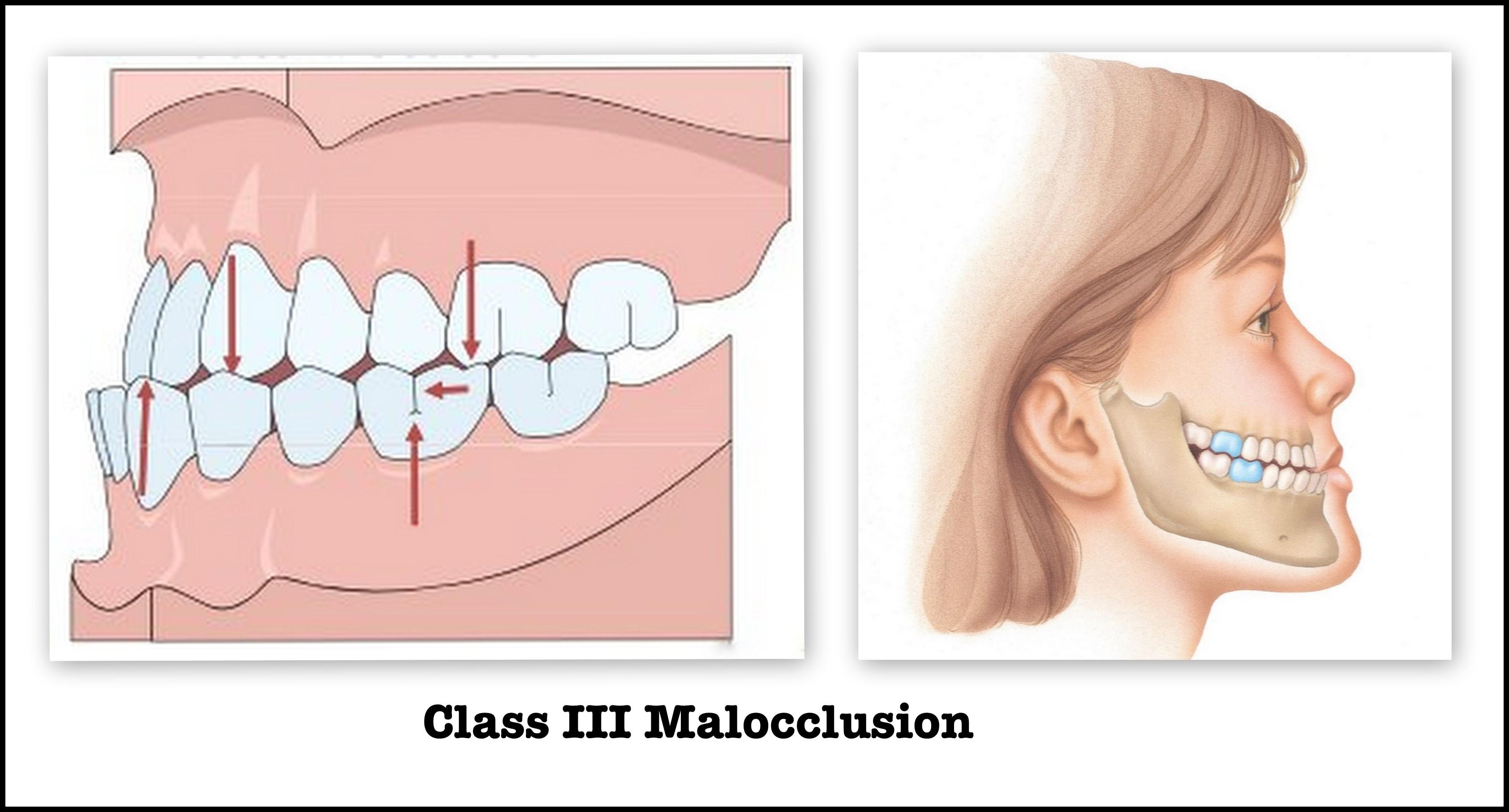 malocclusione-iii-classe-studio-rosato