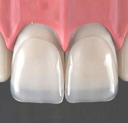 odontoiatria-estetica-studio-odontoiatrico-rosato