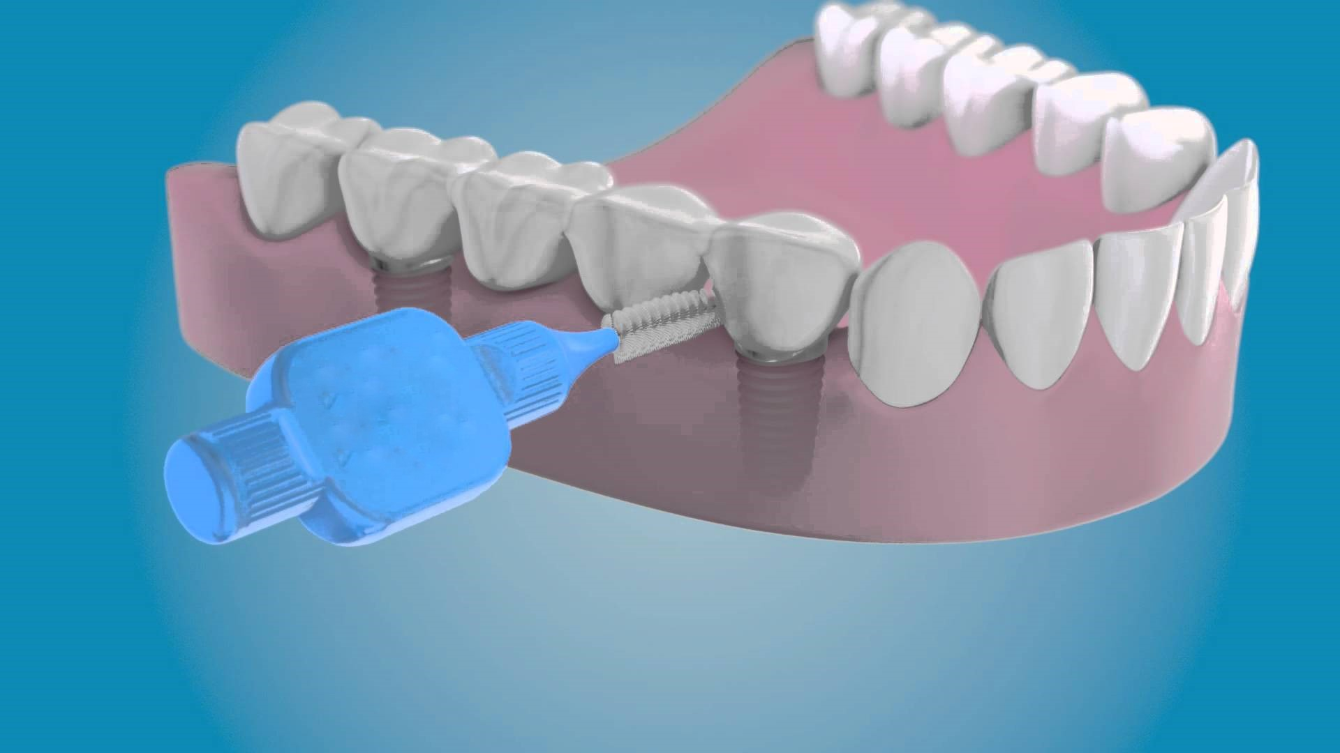 pulizia-impainti-studio-odontoiatrico-rosato