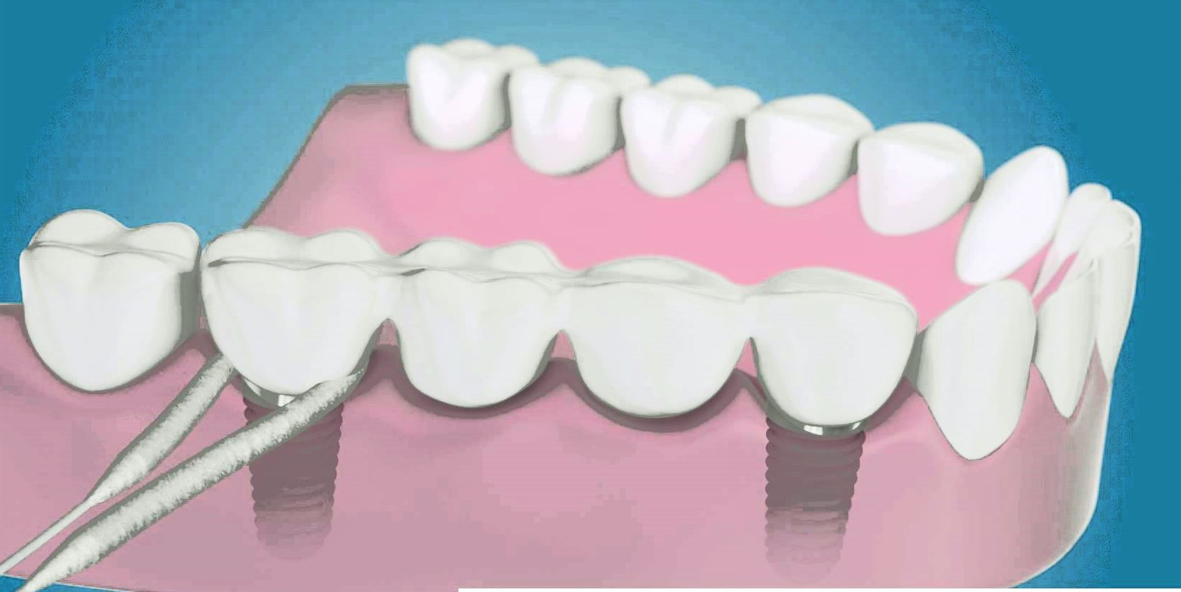 pulizia-impianti-dentista-studio-rosato