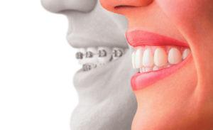 ortodonzia-trasparente-dr-rosato-mascherine